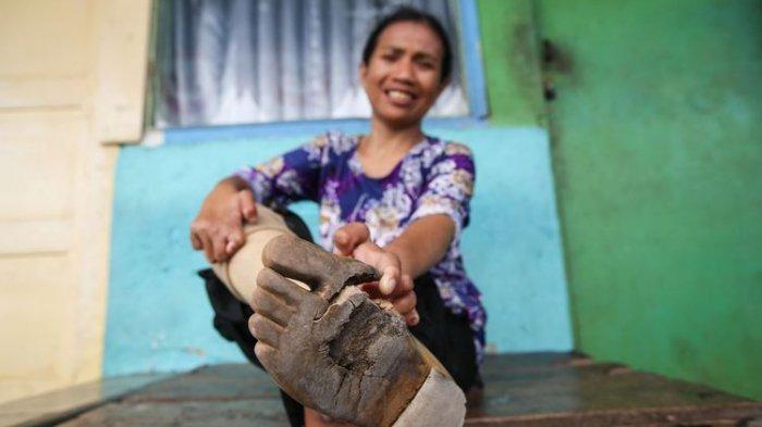 Warga Terjangkit Kusta di Sukoharjo Tembus 23 Kasus, Terungkap Ada yang Sudah Mengalami Kecacatan