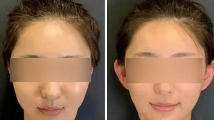 Dulu Dianggap Cacat, Telinga Peri Kini Malah Ngetren di China, Dokter Ingatkan Bahaya Nekat Operasi