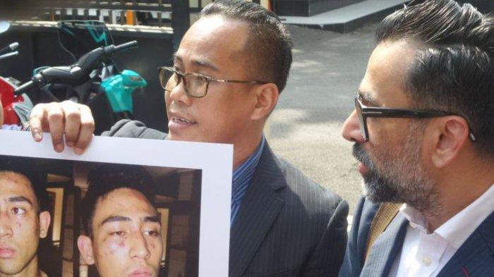 Soal Kasus Putra Jeremy Thomas, Polisi : Kalau Terpaksa, Tak Perlu Surat Perintah
