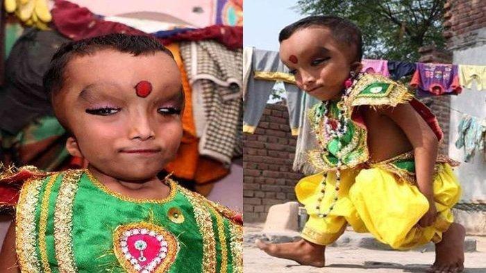 Kisah Prashu, Bocah Miskin yang Lahir dengan Kelainan Fisik, Justru Dipuja dan Dianggap Titisan Dewa