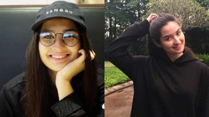 Kulit Wajah Anak Titi DJ, Stephanie Poetri Bikin Geger Netizen Saat Pamer Potret Close Up