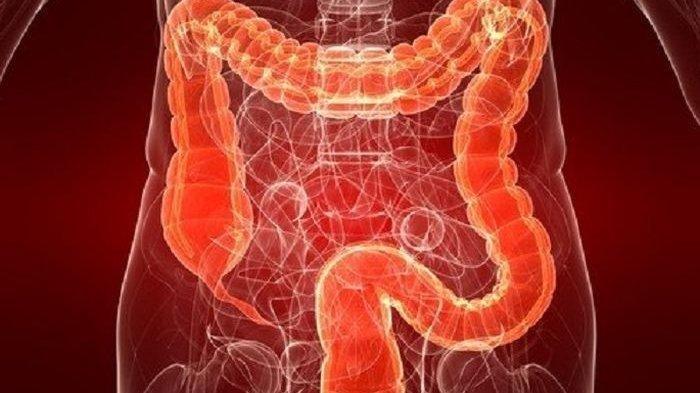 Kenali Gejala Penyakit Usus Buntu, Waspada Bila Sering Sembelit atau Diare