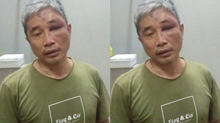 Babak Baru Kasus Penganiayaan M Kece, Polisi Sebut Ada Eks Petinggi FPI yang Terlibat, Siapakah Dia?