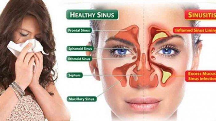 Bisakah Infeksi Sinusitis Sembuh dengan Sendirinya? Begini Penjelasan Dokter THT