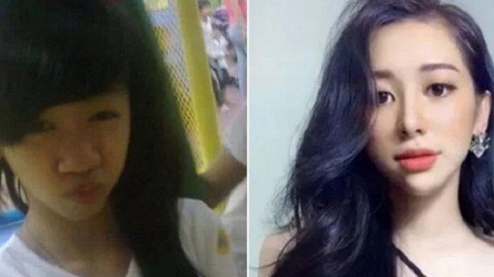 Pilih Jalani Operasi Plastik Setelah Putus dari Pacar, Gadis Ini Viral saat Unggah Foto Lamanya