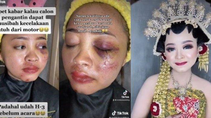 Viral Wanita Kecelakaan H-3 Resepsi Pernikahan, Wajahnya Penuh Luka Lebam, Riasan MUA Tuai Pujian