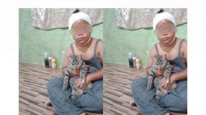 Viral Kisah Bocah Penuh Luka Cakaran Tapi Tetap Sayang Pada Kucingnya, Aksinya Tuai Banyak Pujian