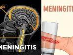 cara-simpel-mengecek-penyakit-meningitis-di-tubuh.jpg