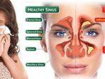 sinusitis-atau-bisa-juga-disebut-infeksi-sinus.jpg