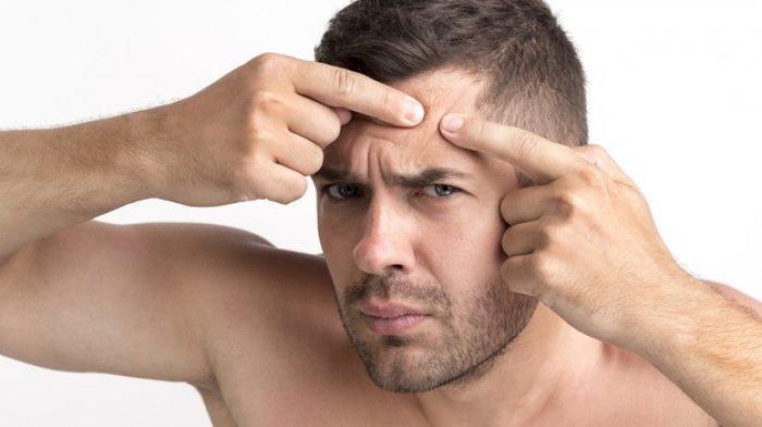 4 Langkah Mudah Perawatan Kulit Wajah untuk Pria, Ampuh Usir Jerawat & Menjaga Kelembapan