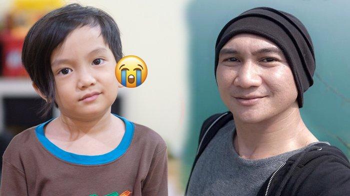 Daun Telinganya Bengkak Besar Sebelah, Putra Anji Manji Ternyata Mengidap Infeksi