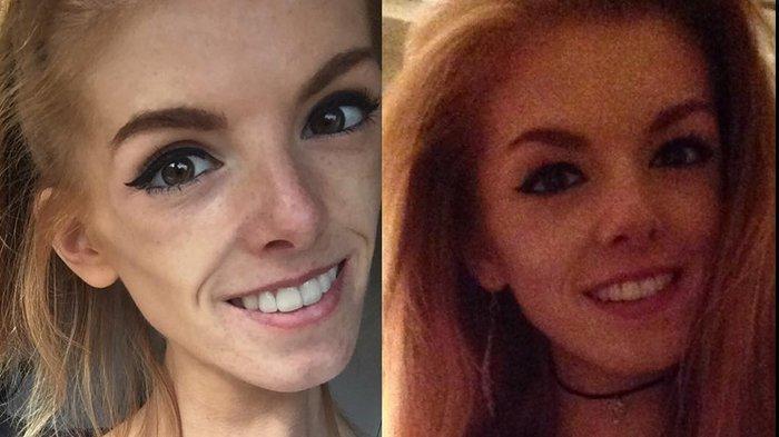 Diselamatkan Sebatang Cokelat, Perempuan ini Sembuh dari Anoreksia