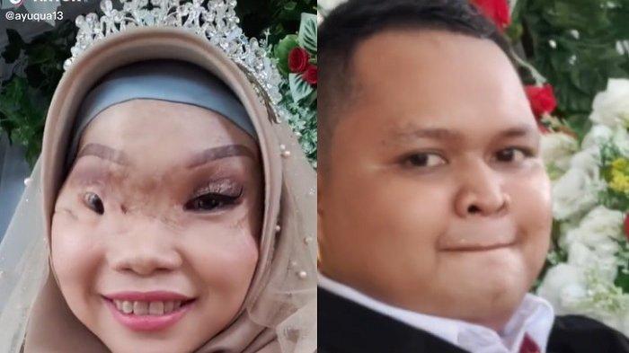 Ayu Gadis Viral Korban Kecelakaan Perahu Kini Beri Kabar Bahagia, Baru Saja Menikah Disunting Jejaka