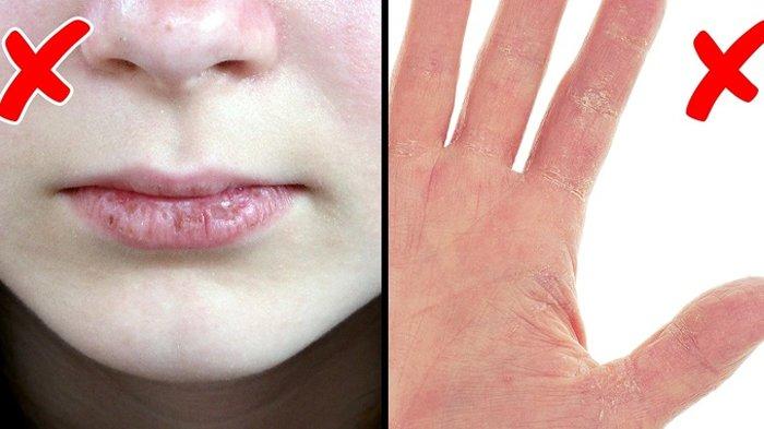 10 Tanda Tubuh Mengalami Masalah Kesehatan Serius, Dilihat dari Kondisi Bibir, Kuku hingga Rambut