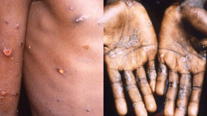 Gambar orang yang terkena Monkeypox atau cacar monyet