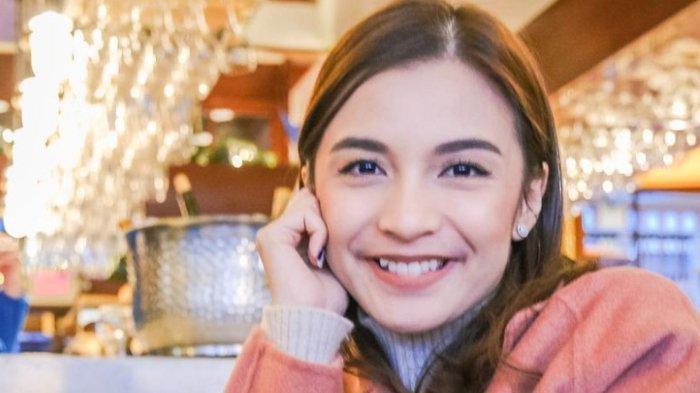 Berhari-hari Galauin Gigi Gingsul, Chelsea Olivia: 29 Tahun Senyum dengan Gingsul, Kini Say Goodbye