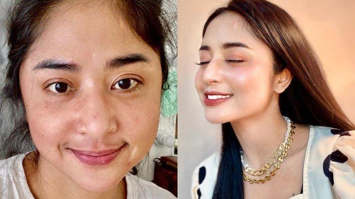 Sempat Kena Covid-19, Dewi Perssik Ungkap Kondisinya, Istri Angga Wijaya Bagi Hasil Swab Terbaru