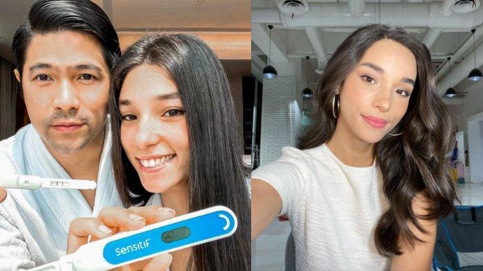 Erick Iskandar Umumkan Kehamilan Istri, Intip Pesona Cantik Vanessa Lima Kakak Ipar Jessica Iskandar