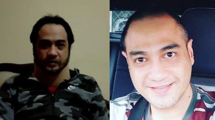 Sudah Jatuh Tertimpa Tangga, 5 Artis Ini Ditinggal Pasangan saat Sakit Keras, Termasuk Ferry Irawan