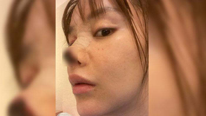 Gao Liu dengan kondisi hidungnya yang menghitam akibat operasi plastik