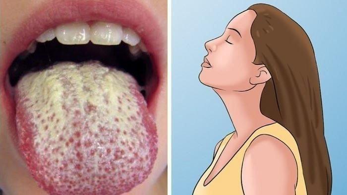 GEJALA BARU Virus Corona, Covid Tongue Infeksi Mirip Sariawan, Kenali Ciri-ciri & Perbedaannya