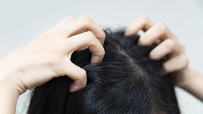 Alami ketombe bertahun-tahun, bisa jadi terkena psoriasis, ini gejala, pemicu serta cara mengatasinya.