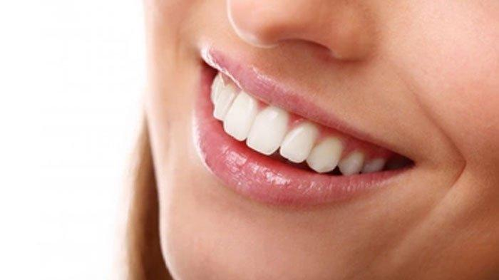 Tampil Percaya Diri, Hilangkan Noda Kuning di Gigi dengan Cara Mudah, Cukup Gunakan Kulit Pisang