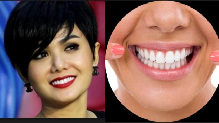 Gigi Putih Bak Yuni Shara, Ini 5 Bahan Ekonomis Putihkan Gigi, Mulai dari Apel hingga Kulit Pisang
