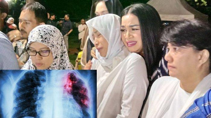 5 Gejala Infeksi Paru-paru, Penyakit Ibunda Ayu Dewi, Demam Hingga Sesak Nafas, Ini Cara Pencegahan!