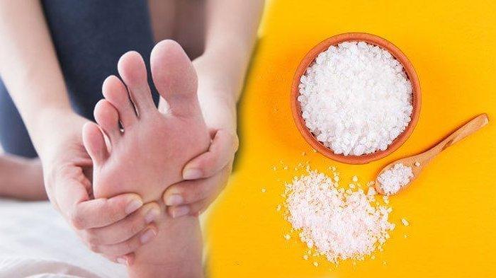 5 Cara Mengobati Kutu Air dengan Bahan Rumahan, Singkirkan Gatal Pakai Garam hingga Teh