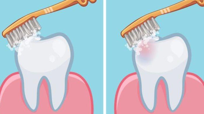 Haruskah Kita Menyikat Gigi Setelah Sarapan? Ini Jawaban Dokter Gigi agar Tak Rusak Email