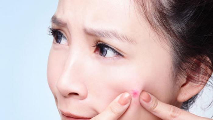 Kenapa Jerawat Muncul, 6 Hal Ini Mungkin Bisa Jadi Penyebabnya: Stres hingga Kebiasaan Buruk Ini