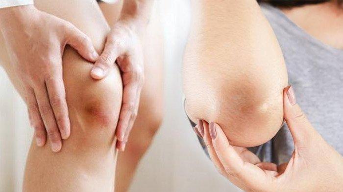 Cara Mencerahkan Lutut dan Siku yang Menghitam dengan 5 Bahan Alami, Madu hingga Teh Hijau