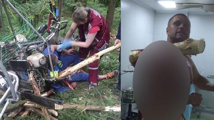 Pesawatnya Jatuh, Bahu Pilot Tertembus Batang Pohon Besar, Masih Sadar dan Bercanda: 'I am Groot!'