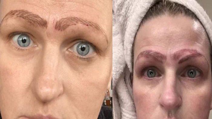 Viral, Perempuan Ini Mencoba Mempercantik Alis Mata, Kini Malah Alisnya Jadi 4 Karena Salah Operasi