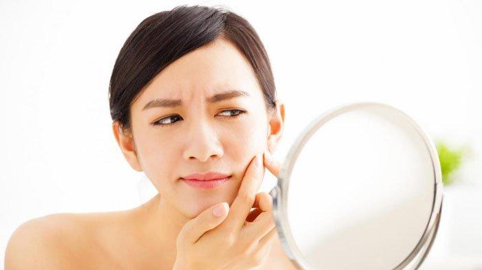 Cegah Jerawat Hormonal Muncul saat PMS, Simak 7 Cara Mudahnya: Perbaiki Gaya Hidup & Perawatan