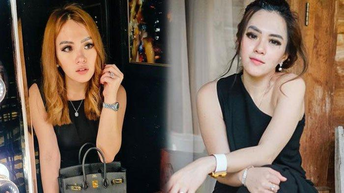 Siapa Jessica Forrester? Simak Profil Selebgram yang Tersandung Kasus Narkoba, Dibekuk di Bali