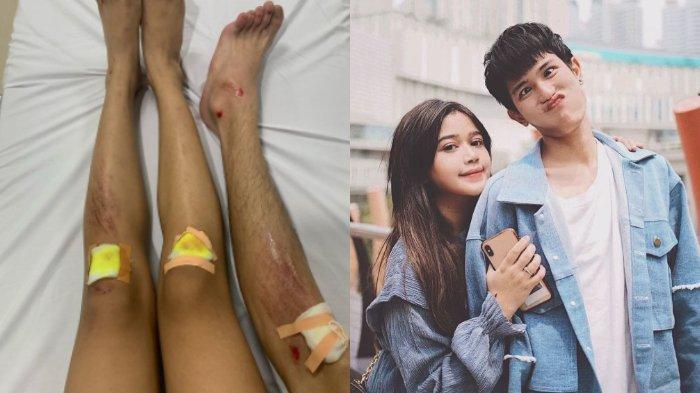 Julian Jacob dan Brisia Jodie alami luka-luka setelah jatuh dari otoped