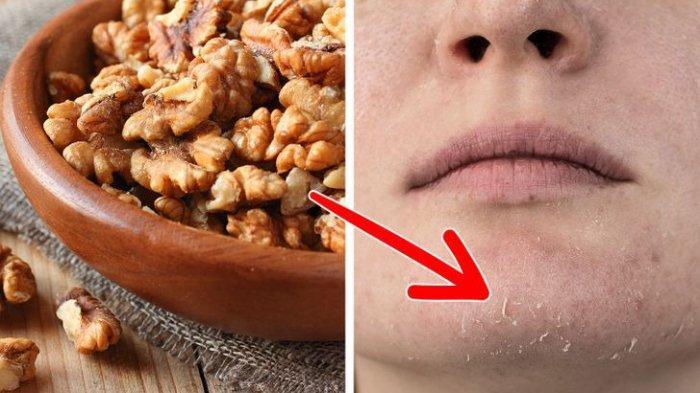 6 Manfaat Kacang Walnut untuk Kecantikan, Konsumsi Setiap Hari Bikin Kulit Lembab Bebas Jerawat