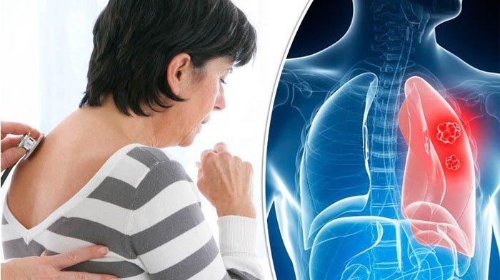 Tak Hanya Merokok, 7 Kebiasaan Ini Juga Bisa Picu Kanker Paru-paru, Cegah Sebelum Terlambat!