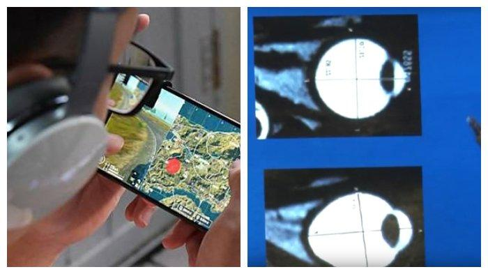 keseringan-main-game-ponsel-bocah-15-tahun-idap-rabun-jauh-ekstrem-2400-drajat-bahaya-cahaya-biru.jpg