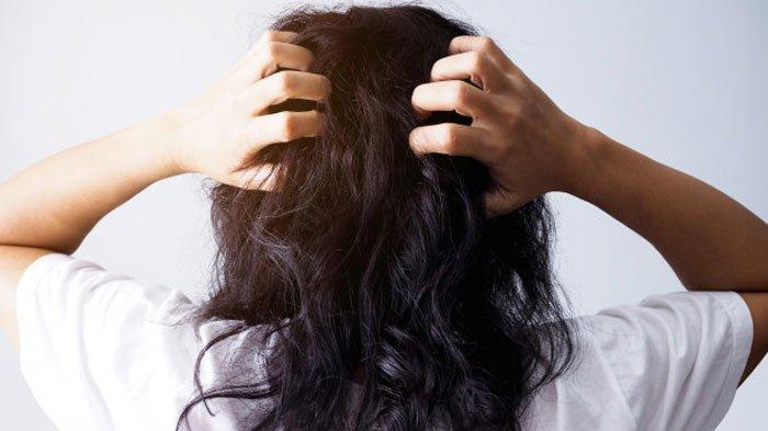 Cara menghilangkan ketombe di kulit kepala