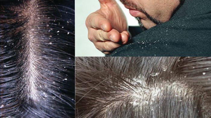 4 Tips Hilangkan Ketombe Pada Rambut Pria Dijamin Rambut Makin Bersih Dan Sehat Tribunstyle Com