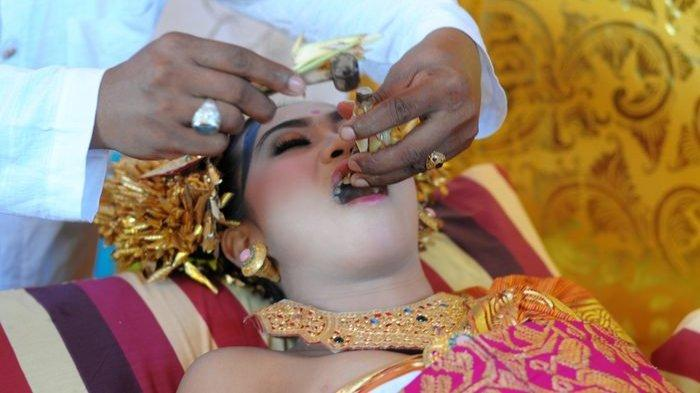 Upacara potong Gigi di Bali.