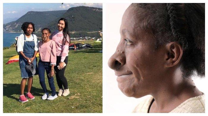 kisah-miris-perempuan-asal-jayapura-miliki-tumor-di-wajah-dibully-anak-anak-hingga-dapat-operasi.jpg