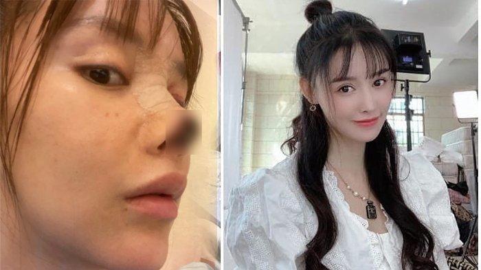 Kondisi Gao Liu setelah dan sebelum lakukan operasi plastik