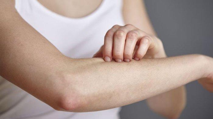 Waspadai Gatal-gatal yang Disebabkan Karena Penyakit Diabetes, Disertai Dengan Kesemutan Hingga Luka