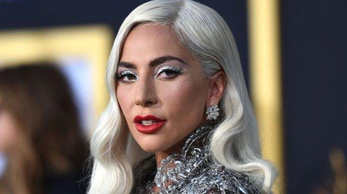5 Fakta Anjing Lady Gaga Dicuri, Penjaga Ditembak, Siapkan Hadiah Rp 7 Miliar Bagi yang Menemukan