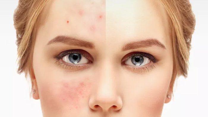 5 Langkah Hilangkan Bekas Jerawat dengan Skincare, Tak Boleh Sembarangan Agar Tak Makin Parah