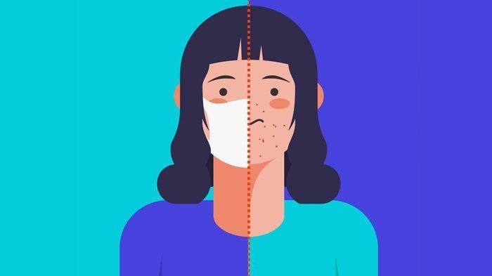 Maskne (Jerawat karena penggunaan masker)
